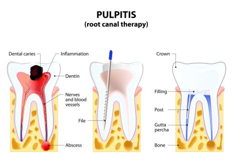 endodoncija pulpitis