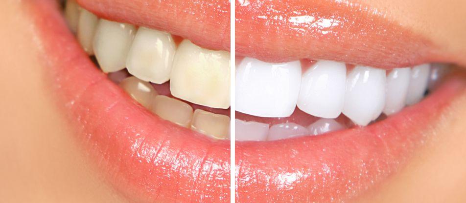 izbijeljivanje zubi