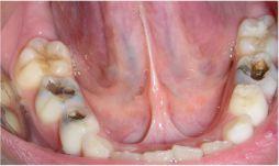 karijes-salona-dental