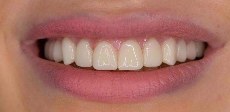 Salona Dental ljuskice