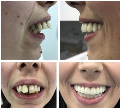 All on 4 metoda - slučaj mlade pacijentice koja je patila od rapidnog parodontitisa
