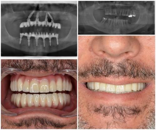 All on 4 metoda - slučaj odrasle osobe koja je dugi niz godina patila od parodontitis