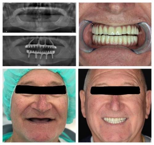 All on 4 metoda - slučaj bezubosti (totalne proteze)